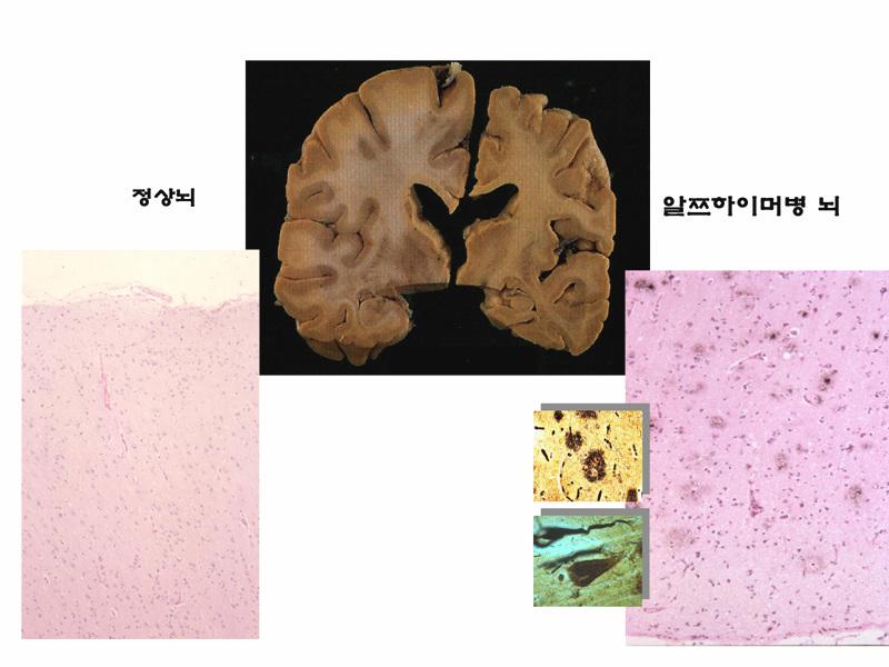 정상뇌 치매뇌 2.jpg