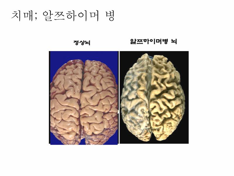 정상뇌 치매뇌.jpg